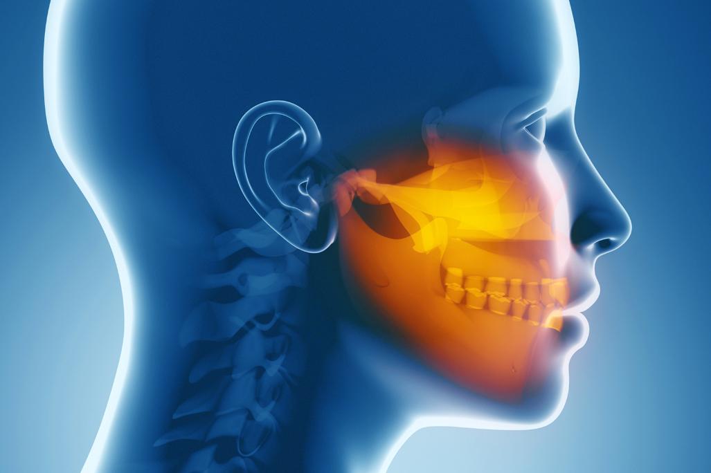 avanzamento mandibolare